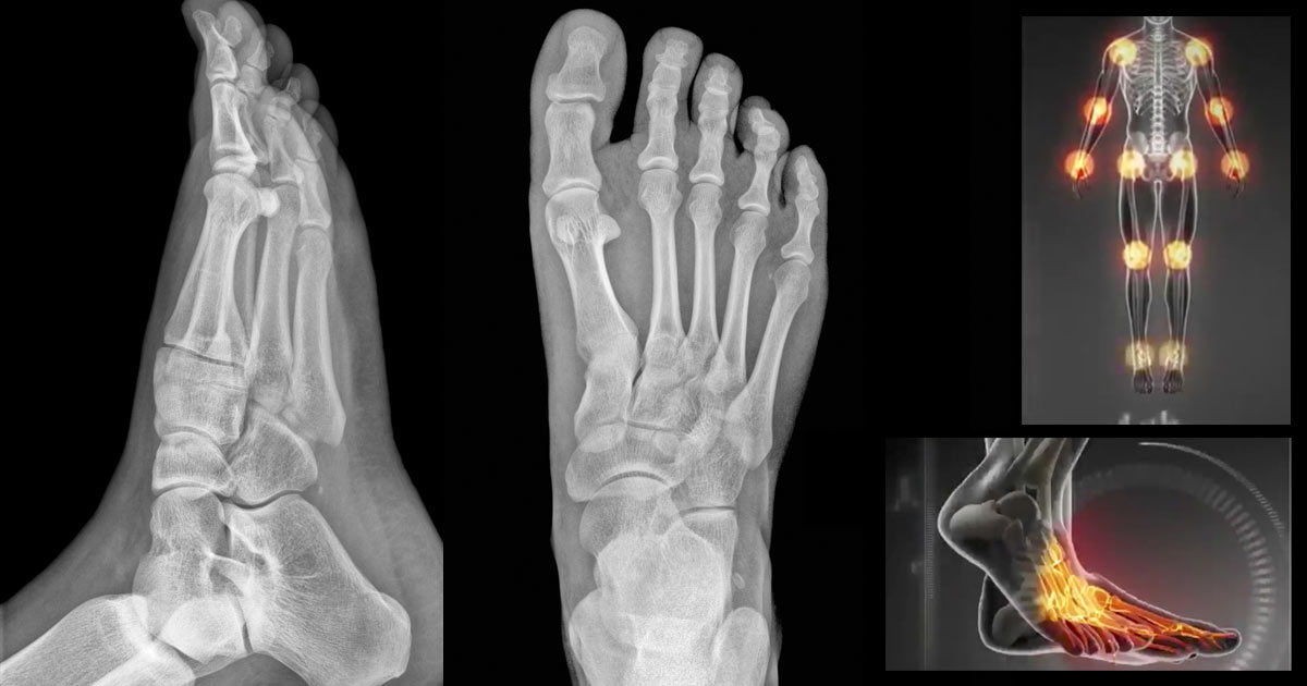 Two X-ray images of a right foot, from top and side, with a hot spot diagram to the right.