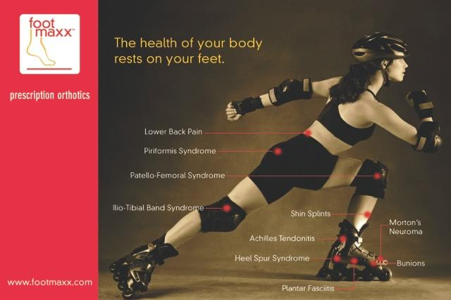 An athlete stretches out her stride: diagram of the places and joints that orthotics affect.