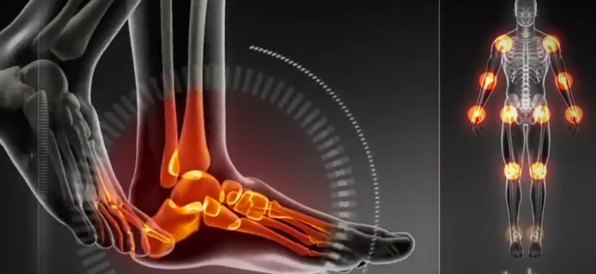 Orthotics are a competitive edge for athletes
