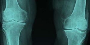 Knee x-rays.