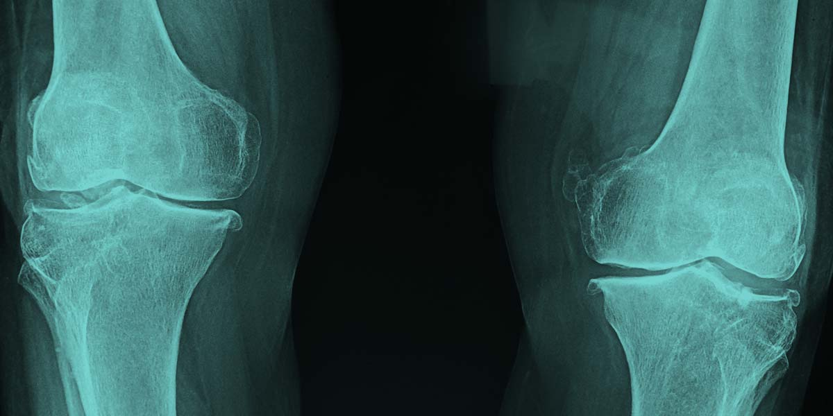 Just what do X-rays tell us